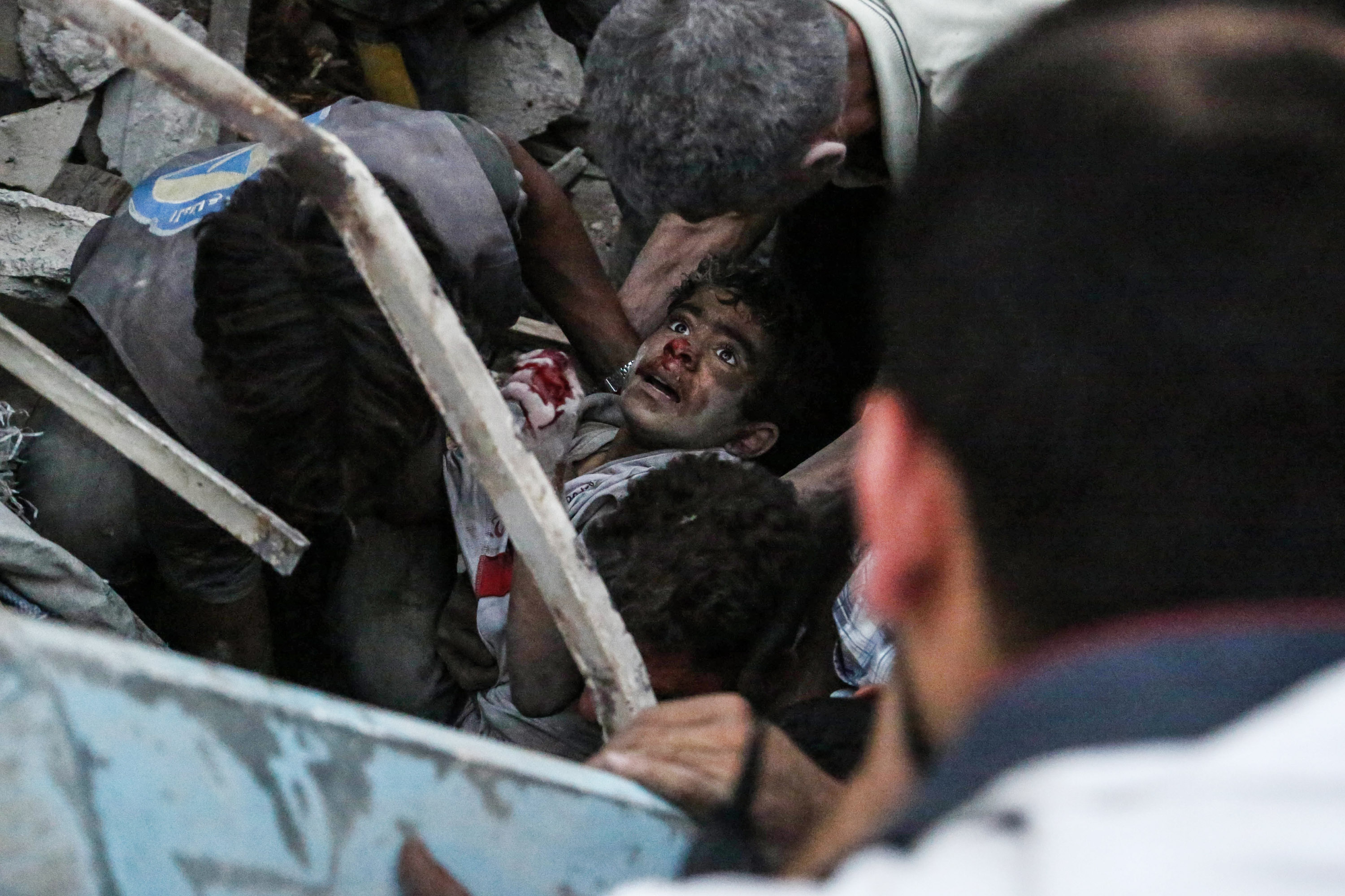 Syrians evacuate an injured boy from rubble following a reported air strike on a rebel-held town of Douma, northeast of the capital Damascus on June 16, 2015. Nearly every day, Syria's air force drops barrel bombs -- containers packed with crude explosives and shrapnel -- on areas wrested from government control by rebels.  / AFP PHOTO / SAMEER AL-DOUMY